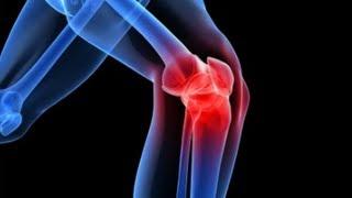 ideális artróziskezelés