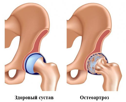 milyen gyógynövényeket igyon a csípőízület osteoarthritisével)