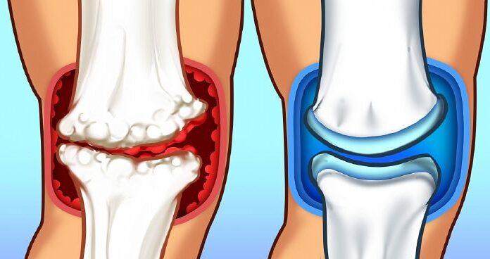 A műtét utáni otthoni fájdalomcsillapítás lehetőségei