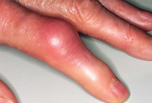 búza kezelés artrózis esetén