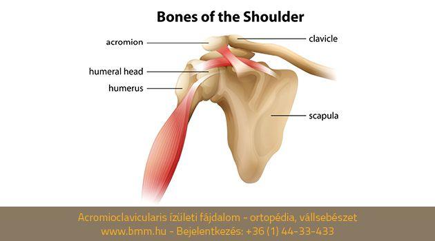 az acromioclavicularis ízületi kezelés osteoarthrosis