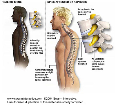 fájdalom a vállízületben nyaki osteochondrozzal