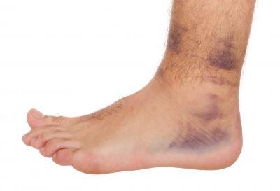 boka láb sérülése az osteoarthritis és a térd synovitis kezelése