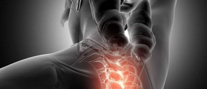 a csigolyák együttes spondylarthrosisának kezelése