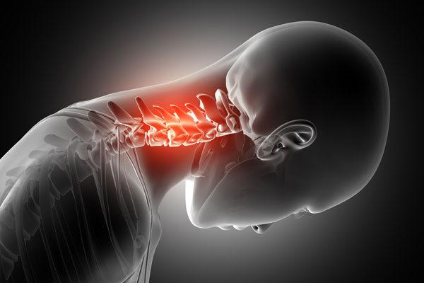 a nyaki gerinc kenőcsének csontritkulása)