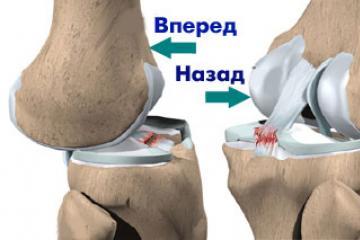 a térd keresztezett kötéseinek károsodása)