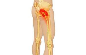 Mikor forduljunk orvoshoz derékfájdalommal?