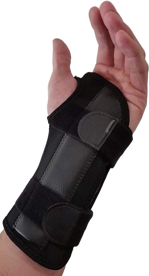 carpal sprain kezelés