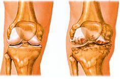 zselatin artrózis és ízületi fájdalmak kezelésére)