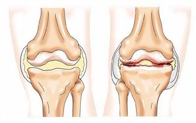térdízület első fokú osteoarthrosis