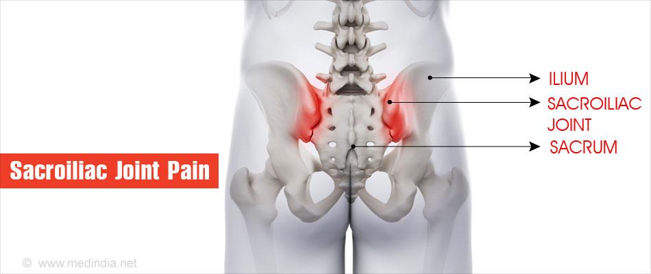 ízületi fájdalom fenékben gyulladáscsökkentő kezelés