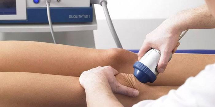 a csípőízület második fokozatának artrózisa)