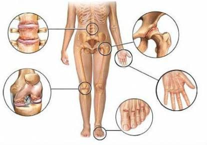 a lábujjak ízületeinek osteoarthrosis)