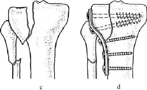 a könyökízület sérülése esetén kötszert kell használni