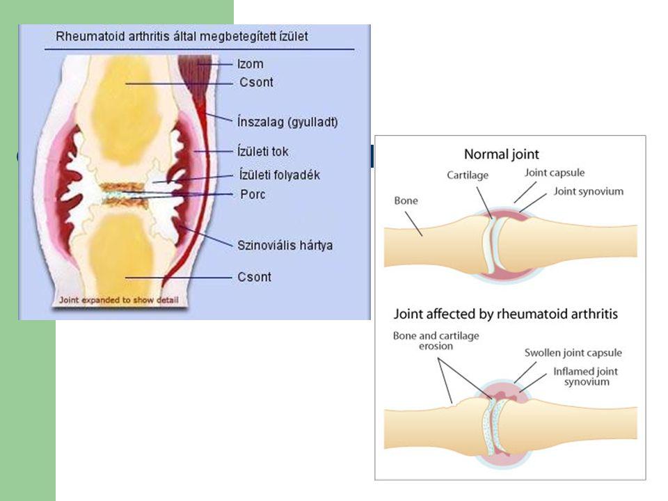 csuklóízületek ízületi gyulladása
