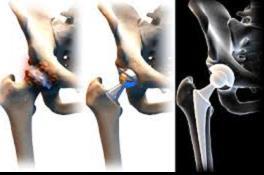 csípőízületek artrózisának kezelése műtét nélkül)