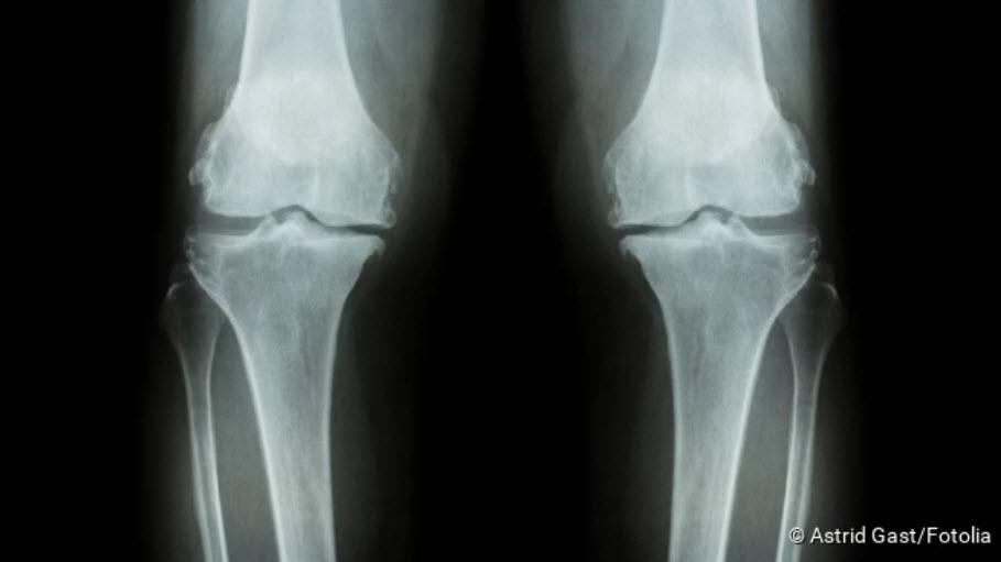 artrosis coxarthrosis kezelése)