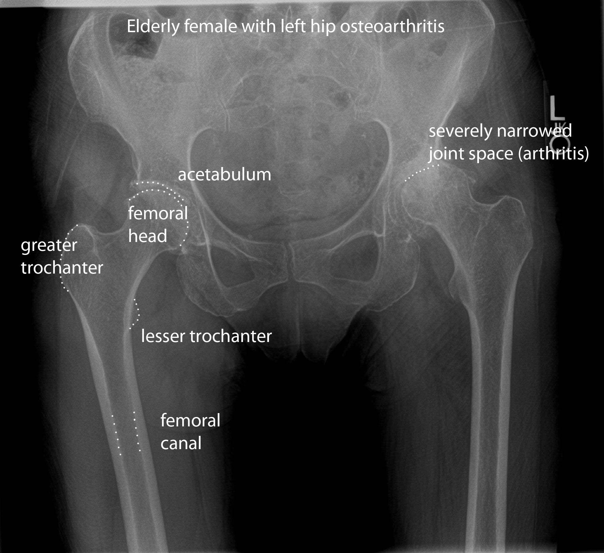 Klinikai vizsgálatok a Orthopedics - Klinikai vizsgálatok nyilvántartása - ICH GCP