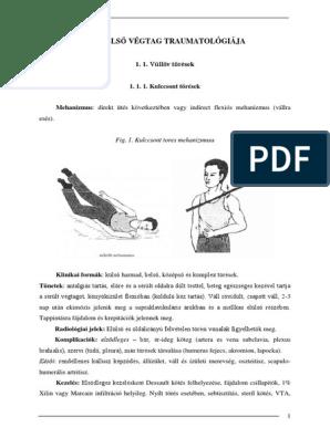 Dr. Diag - Osteoarthrosis coxae, primer