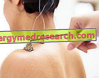 ízületek és ragasztók készítményei sportolók számára a kéz ízületi tüneteinek kezelése