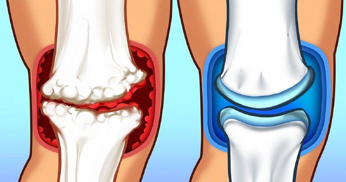 a nyaki-váll artrózis kezelése