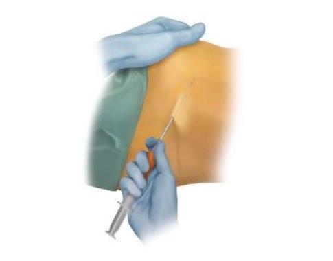 folyadék a térdízület kezelés szuprapateláris tasakjában mikroáramú kezelés artrózis