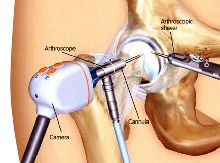 a csípőízület komplex kezelése artrózis és a vállízület ízületi gyulladása