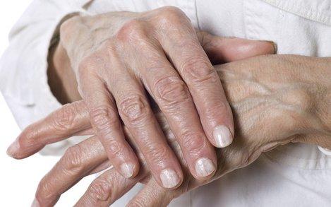 hogyan lehet legyőzni a kéz izületi gyulladását)