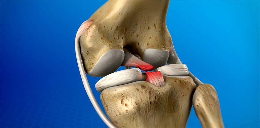 Térdsérülés: nemcsak a műtét lehet megoldás - EgészségKalauz