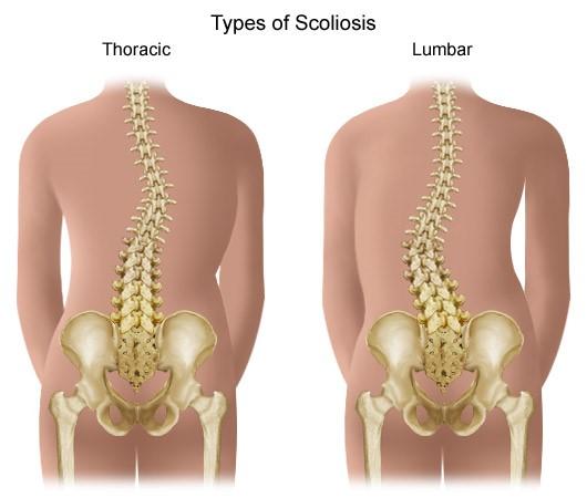 gerincvelő artrózis kezelés fájdalom a térdrándulásban