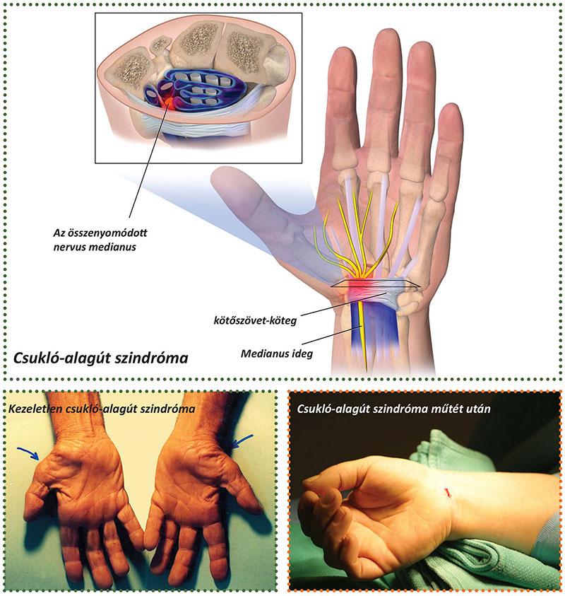 az ujjízület mozgásának helyreállítása
