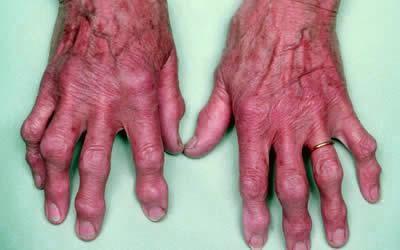 az interfalangealis ízület artrózisának kezelése közös gyógyszer bayer