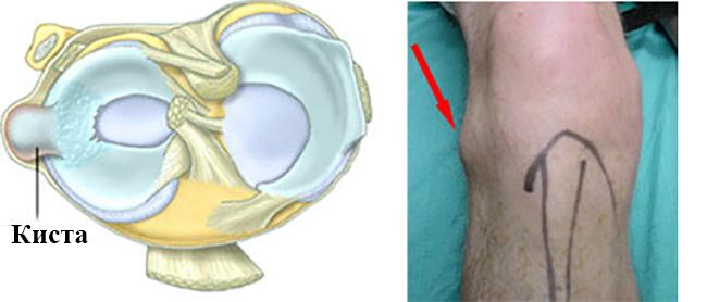 a térdízület kétfokú artrózisa 1 fok)