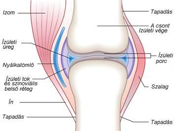 ami azt jelenti, hogy a térdízület artrózisa 2 fok