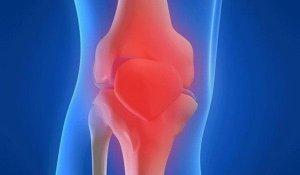 csípőízület hogyan lehet enyhíteni az akut fájdalmat