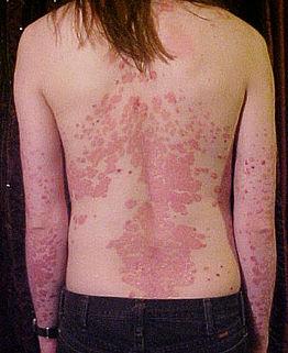 psoriasis arthritis hogyan kezelhető ízületi gyulladásos vállízületi kezelés
