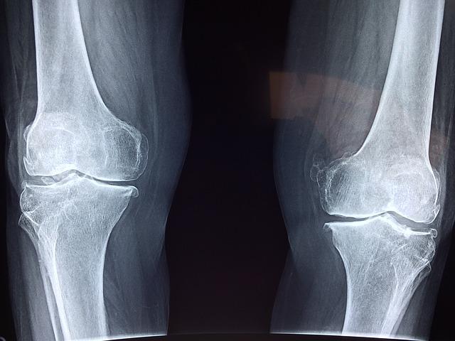 a csípőízület 1. fokozatának artrózisa gyógyítható