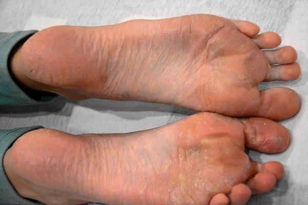 lábak artrózisával, 1 fokos kezelés