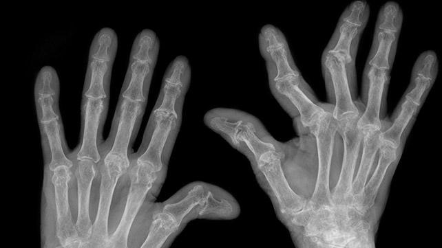 a második lábujj rheumatoid arthritis