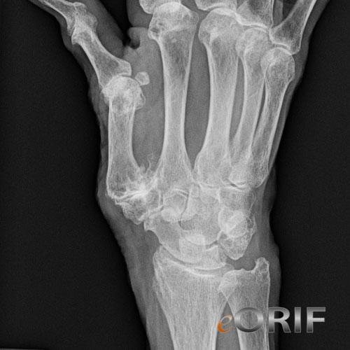 metacarpophalangeal joint osteoarthritis icd 10