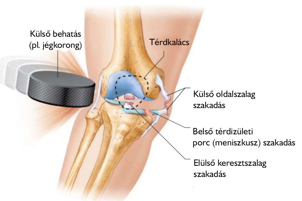 a térd tünetei belső oldalsó ínszalagjának károsodása