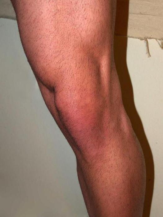 Pocleválás, térdfájdalom, meniszkusz sérülés kezelése Térdízületi ízületi meniszkusz törése