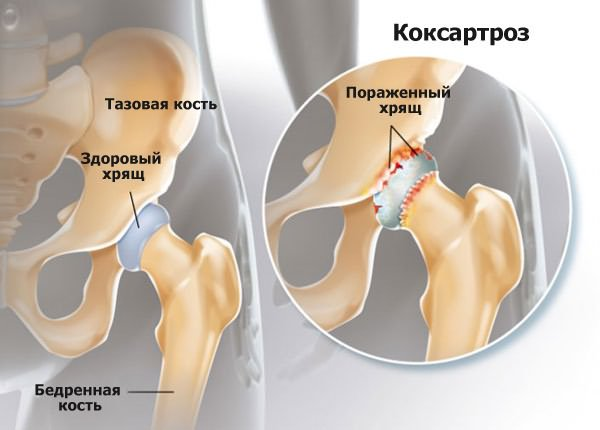 a csípőízület coxarthrosisának kezelési módszerei