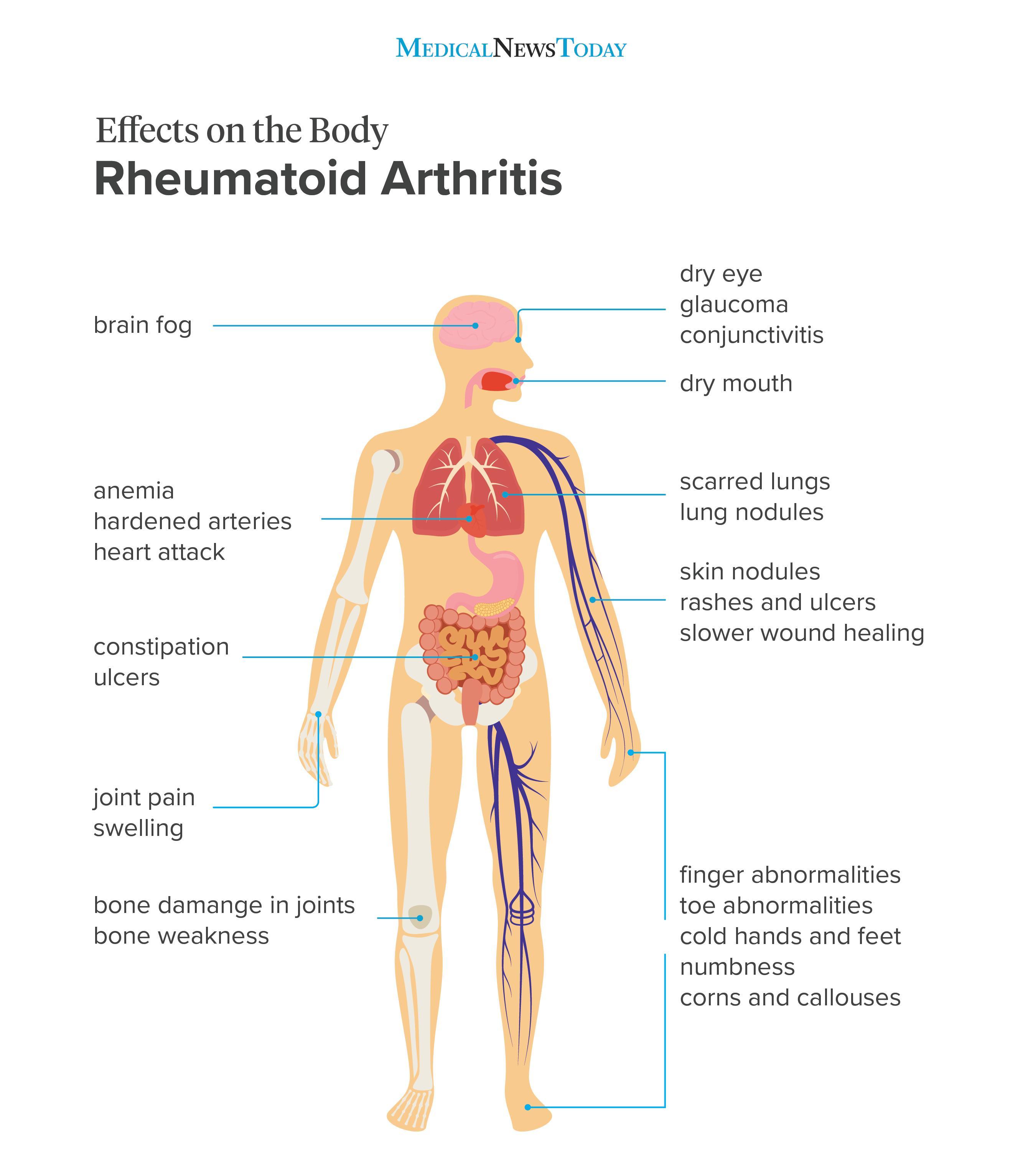 rheumatoid arthritis bursitis a könyökízületben számítógépes és ízületi betegségek