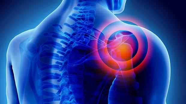 éjszakai erős vállfájdalom cellulitis kötőszöveti gyulladás