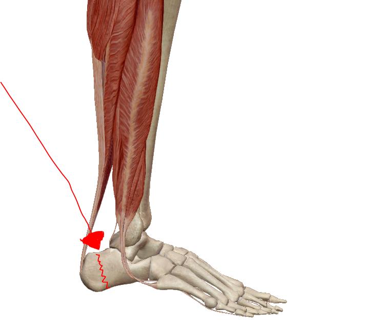 az alsó láb ízületgyulladása
