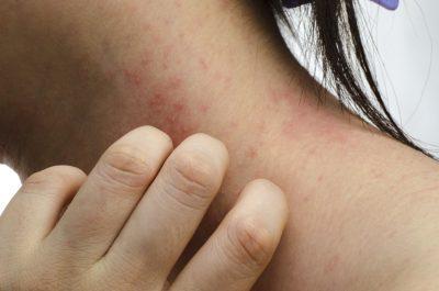 nonionion törés és hamis ízületi kezelés