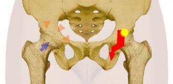 a csípőízületi gyulladás konzervatív kezelése a kezek könyökgyulladása