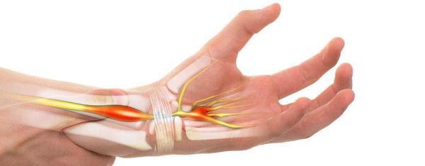 carpal sérülések kenőcsök a kézízületek ízületi gyulladásának kezelésére