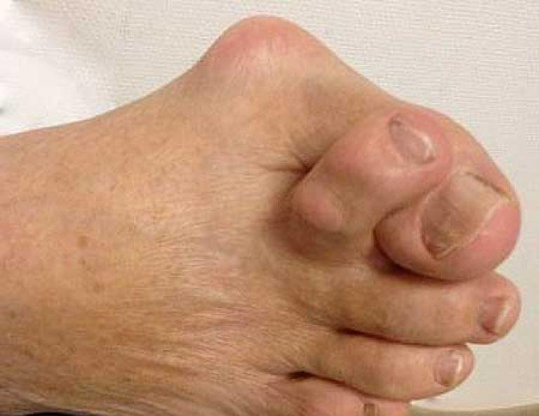 A láb bursitise: kezelés és megelőzés - Térd